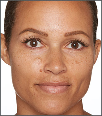 Specific Beauty Before - dramatically improve the appearance of melasma spots and skin discoloration