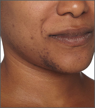 Specific Beauty Before photo - helps diminish the appearance of dark marks and dark spots