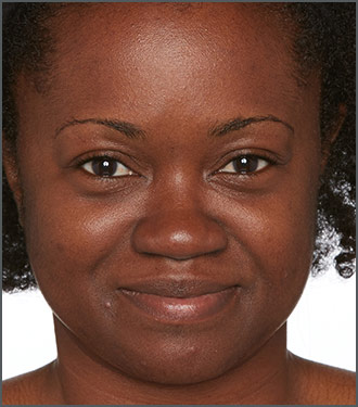 Improve your skin tone with Specific Beauty - Improve the texture of your skin with Specific Beauty - Before photo