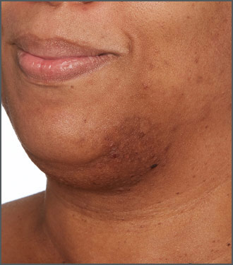 Specific Beauty Before photo - visibily get rid of dark marks - visibly get rid of dark marks