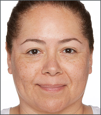Dramatically improve the appearance of the tone and texture of your skin with Specific Beauty - Before photo