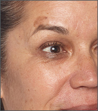 Specific Beauty Before photo - helps reduce the appearance of fine lines and wrinkles on skin
