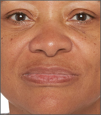 Brighten the look of your skin - Get clear skin - Improve your skin's texture - After photo