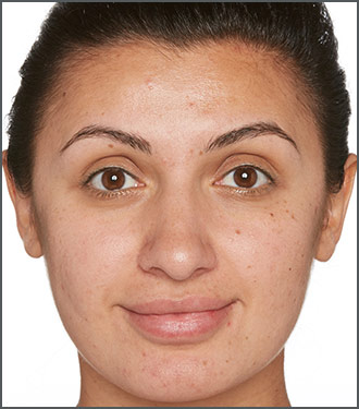 Specific Beauty After - Improve skin's overall clarity and brightness with Specific Beauty. Skin tone improvement