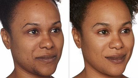 Help fade dark spots today with Specific Beauty. Made to treat the skin problems of African American and black women