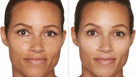 Specific Beauty helps to visibly fade melasma, hyperpigmentation, dark marks and dark spots