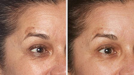 Diminish the appearance of fine lines and wrinkles and age spots with Specific Beauty. Get younger looking skin today.