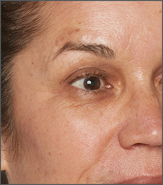 Specific Beauty After photo - helps reduce the appearance of fine lines and wrinkles on skin