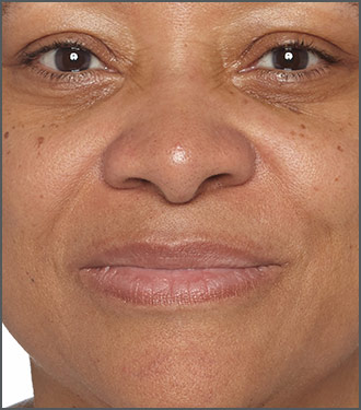Brighten the look of your skin - Get clear skin - Improve your skin's texture - Before photo