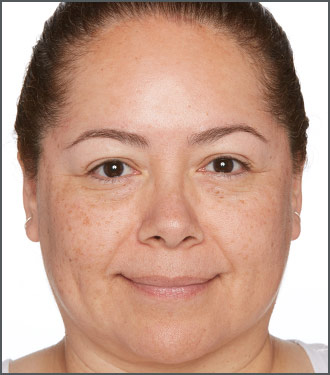 Dramatically improve the appearance of the tone and texture of your skin with Specific Beauty - After photo