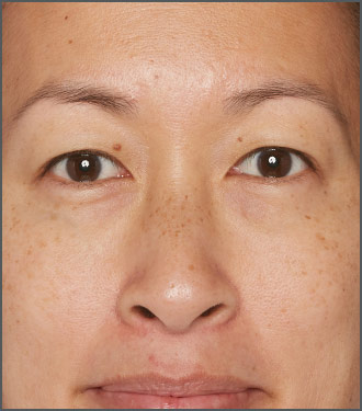 Specific Beauty After - help improve skin brightness and skin clarity with Specific Beauty