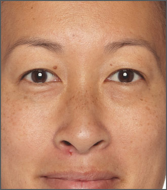 Specific Beauty Before - help improve skin clarity and brightness with Specific Beauty