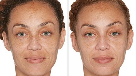 Even out your skin tone with Specific Beauty. Get brighter, smoother, more radiant skin today!