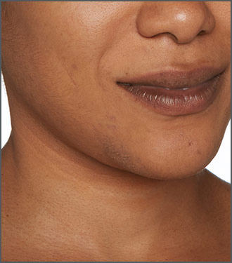 Specific Beauty After photo - dramatically helps reduce the look of dark marks and dark spots