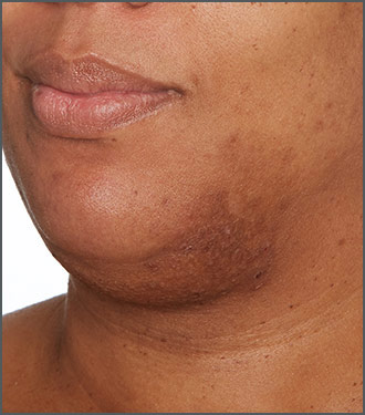 Specific Beauty After photo - visibly get rid of dark marks - visibly get rid of dark marks