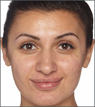 Specific Beauty Before - Improve skin's overall clarity and brightness with Specific Beauty. Skin tone improvement
