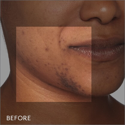Before photo showing dark spots