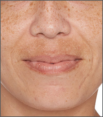 Specific Beauty Before photo - help visibly reduce skin discoloration and issues with skin pigmentation