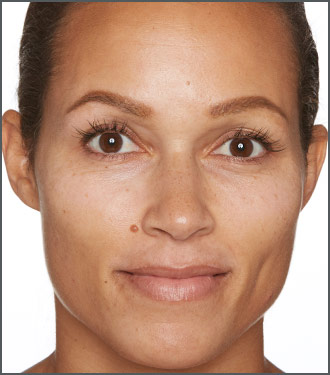 Specific Beauty After - dramatically improve the appearance of melasma spots and skin discoloration