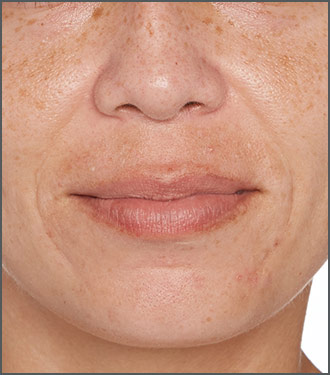 Specific Beauty After photo - help visibly reduce skin discoloration and issues with skin pigmentation