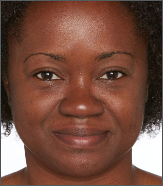 Improve your skin tone with Specific Beauty - Improve the texture of your skin with Specific Beauty - After photo